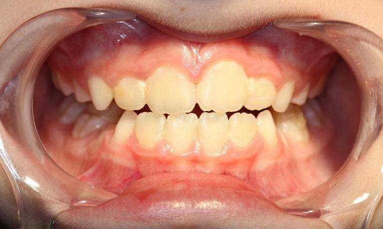 Underbite-Upper-front-teeth-biting-behind-the-lower-front-teeth-After-Image