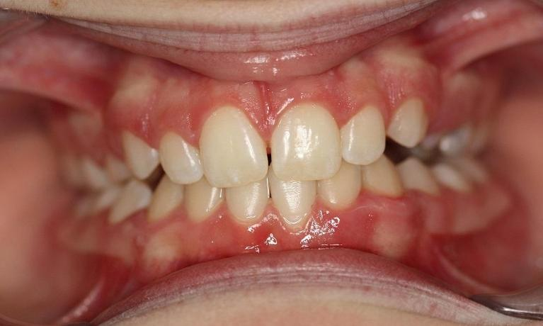 Myobrace-to-correct-overbite-and-front-space-After-Image