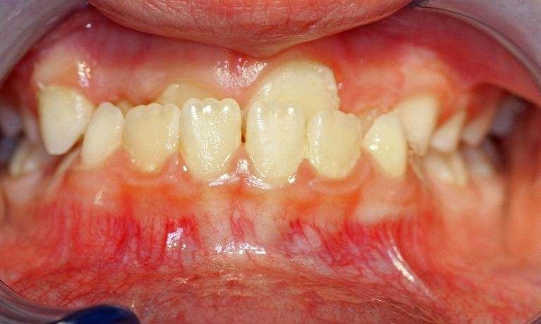 Underbite-Upper-front-teeth-biting-behind-the-lower-front-teeth-Before-Image