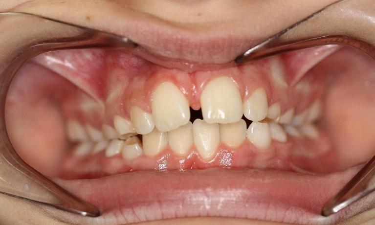 Myobrace-to-correct-overbite-and-front-space-Before-Image